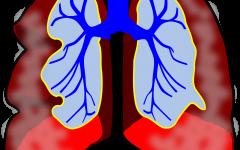טיפול רפלקסולוגי בקוצר נשימה בעונת האביב – טל בלומנטל רפלקסולוגית בכירה