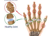 מה היא דלקת פרקים (osteoarthritis) של כף היד ומדוע יש כאב בבסיס האגודל?