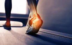 התאמת מדרסים באמצעות מכשיר ניתוח הליכה מתקדם ובדיקה דימנית של כף הרגל